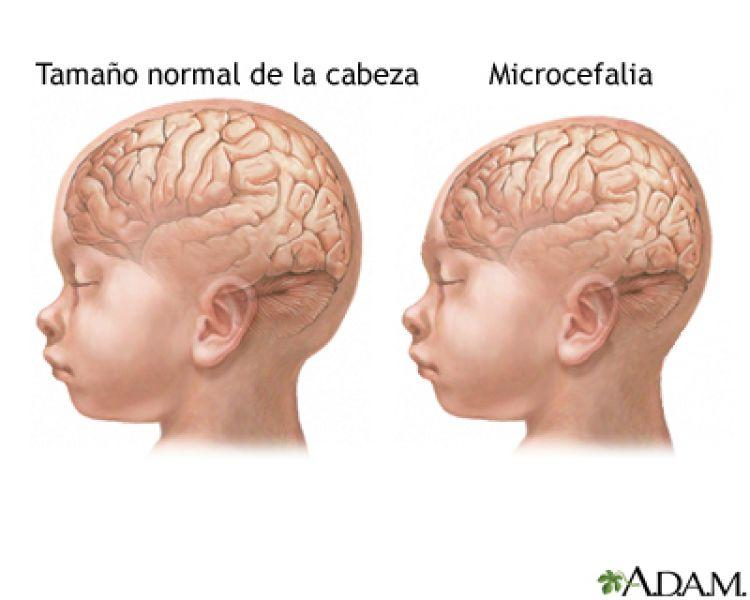 Se confirmaron las microcefalias asociadas a la enfermedad del Zika, tras los estudios realizados en Buenos Aires.