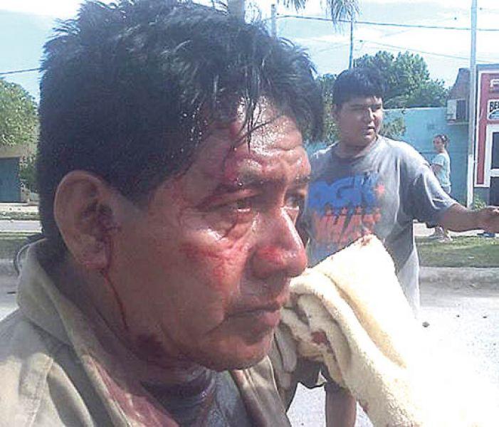 En el despeje de la ruta, 40 civiles y 27 policías resultaron heridos.