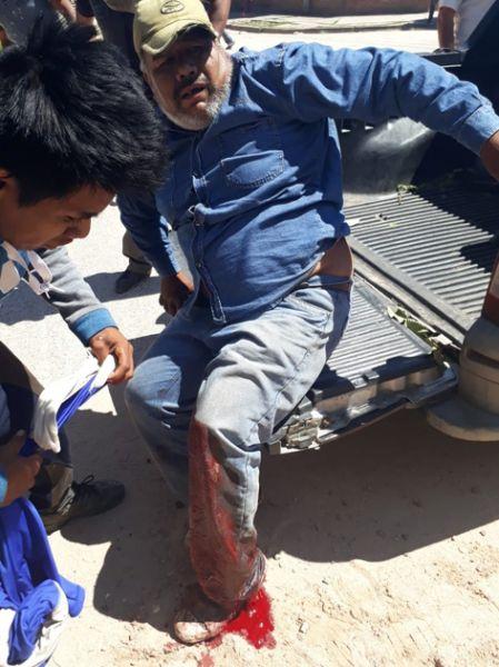 Uno de los manifestantes de las comunidades originarias herido es atendido por sus compañeros tras el accionar policial.