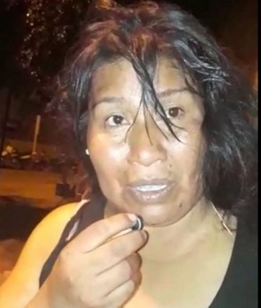 Sandra Pisco sigue internada por presentar golpes en todo el cuerpo.