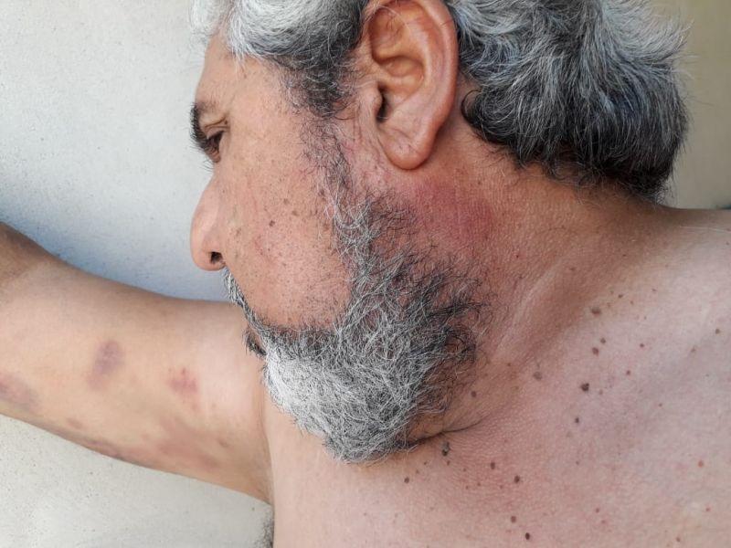 El remisero tiene moretones en los brazos, estómago y parte del rostro