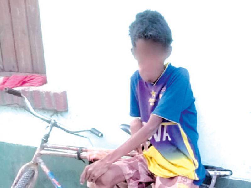 Niño de 14 años que falleció por una desnutrición crónica